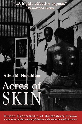 """... of Skin: Human Experiments at Holmesburg Prison"""" as Want to Read"""