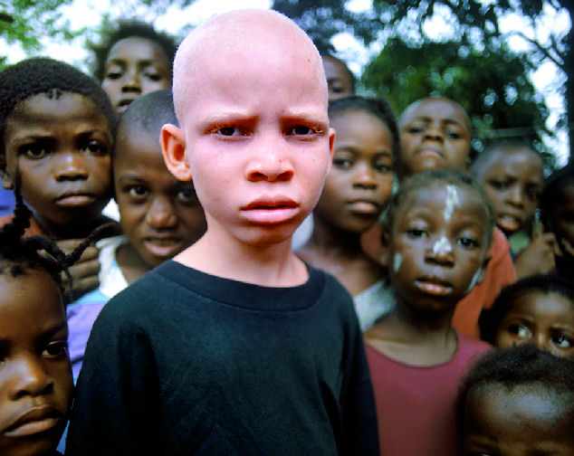 Negros Albinos: serlo es ser un objetivo para ser ...