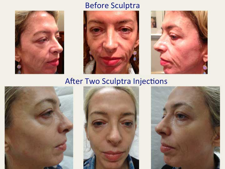 Sculptra Fillers NYC | Sculptra Wrinkle Removal Manhattan, New York