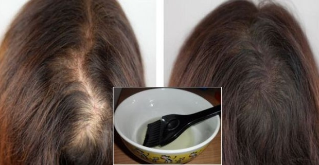 Castor Oil Hair Loss Treatment - HealthInaSecond.com