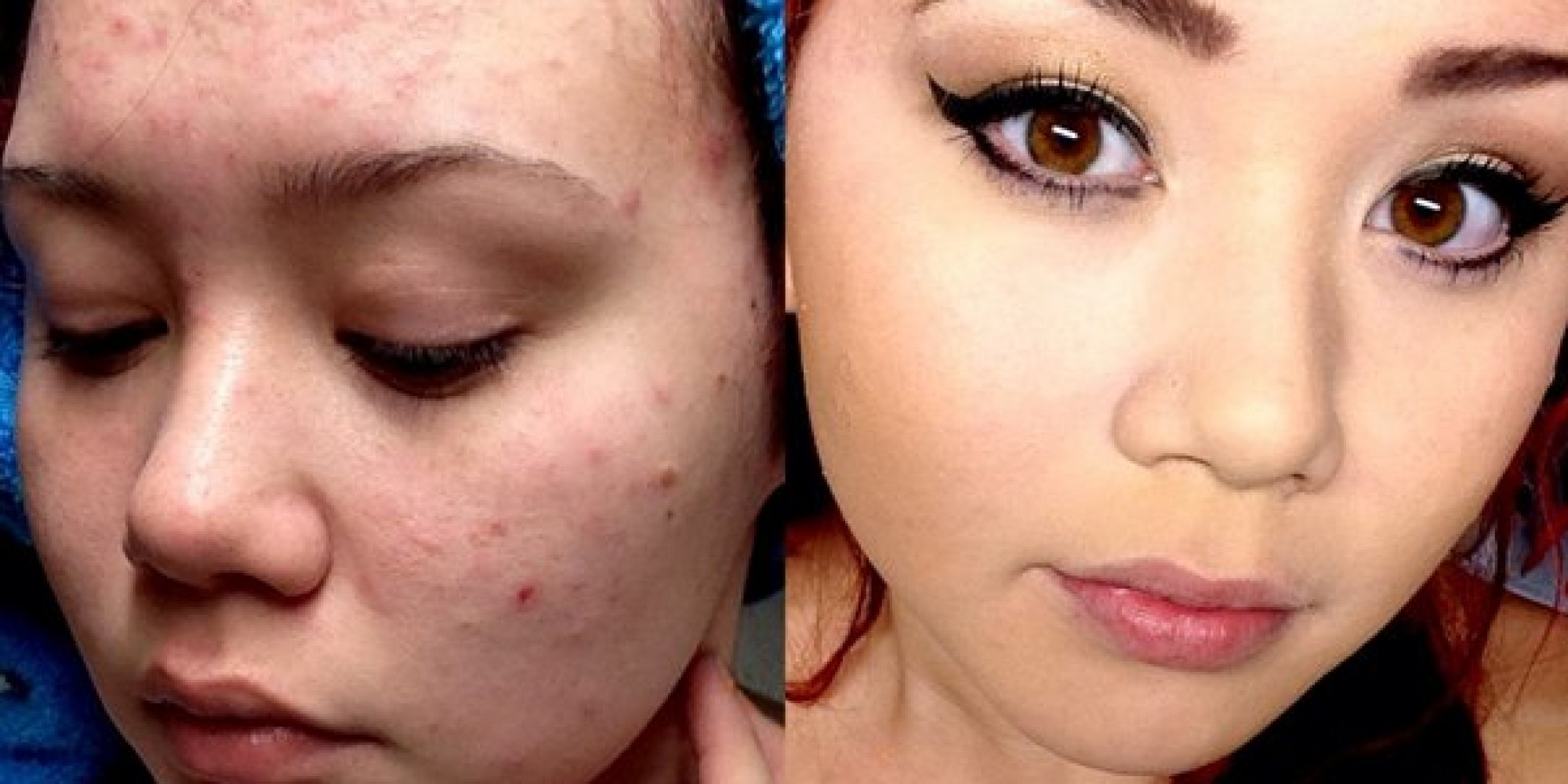 Before-And-After Makeup Photos Show Young Woman's Acne-Ridden Face