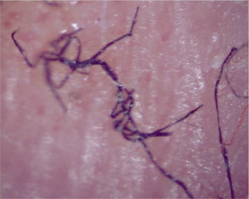 Morgellons Lesions morgellons : real disease or imaginary malady?