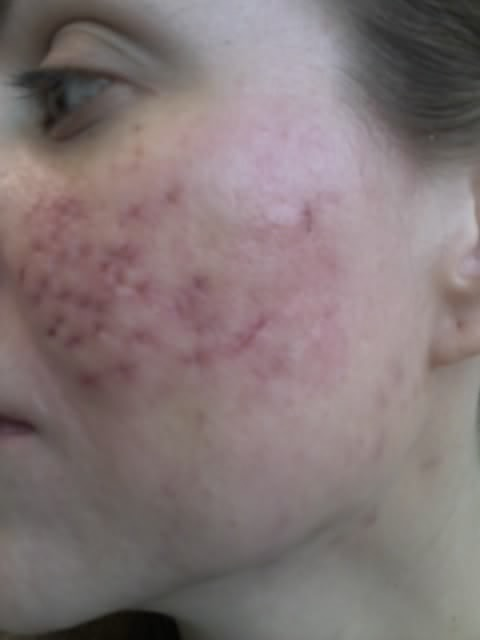 Left cheek punch excision stitches removed 4/29/09 - Cystic Acne Scar revision - Pictures ...