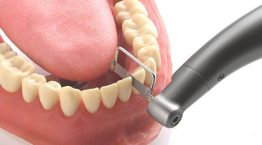 ¿Qué es el stripping dental y para qué se usa? | C.D. Lorenzo