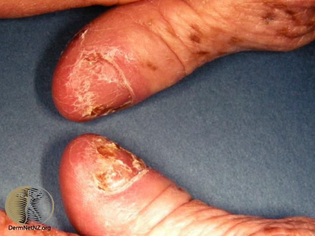 Psoriatic nail dystrophy | Psoriatic nail dystrophy