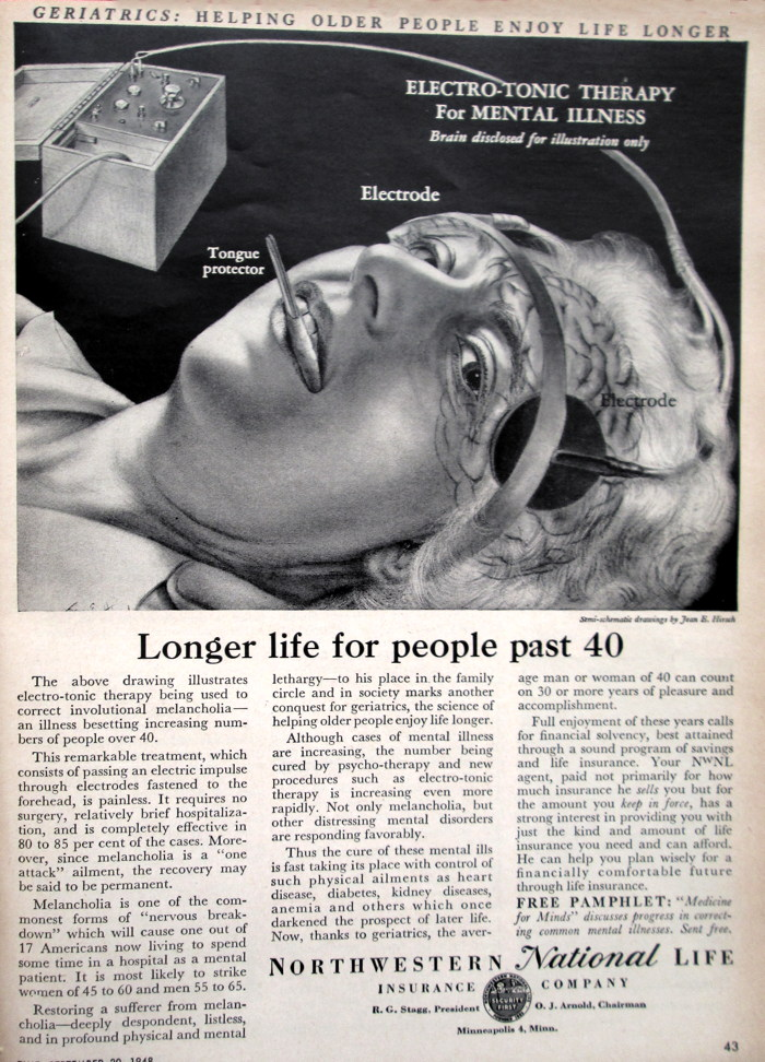 Creepy 1948 ad for electro-shock therapy