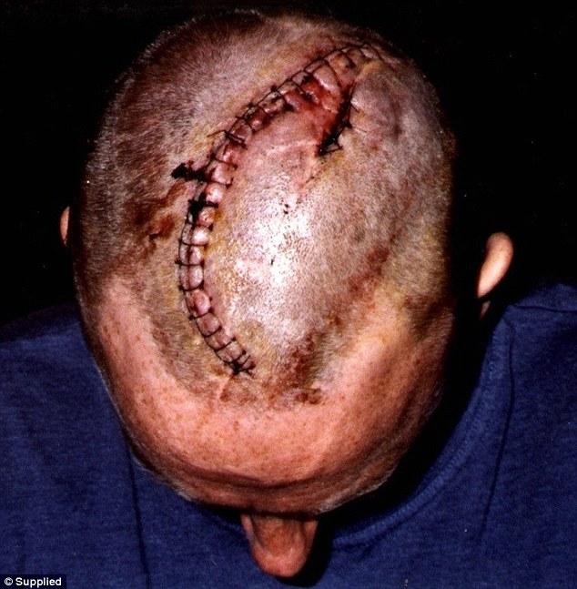 32F61B0500000578-0-His_head_was_badly_in