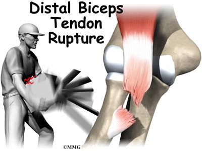 Distal Biceps Rupture | eOrthopod.com
