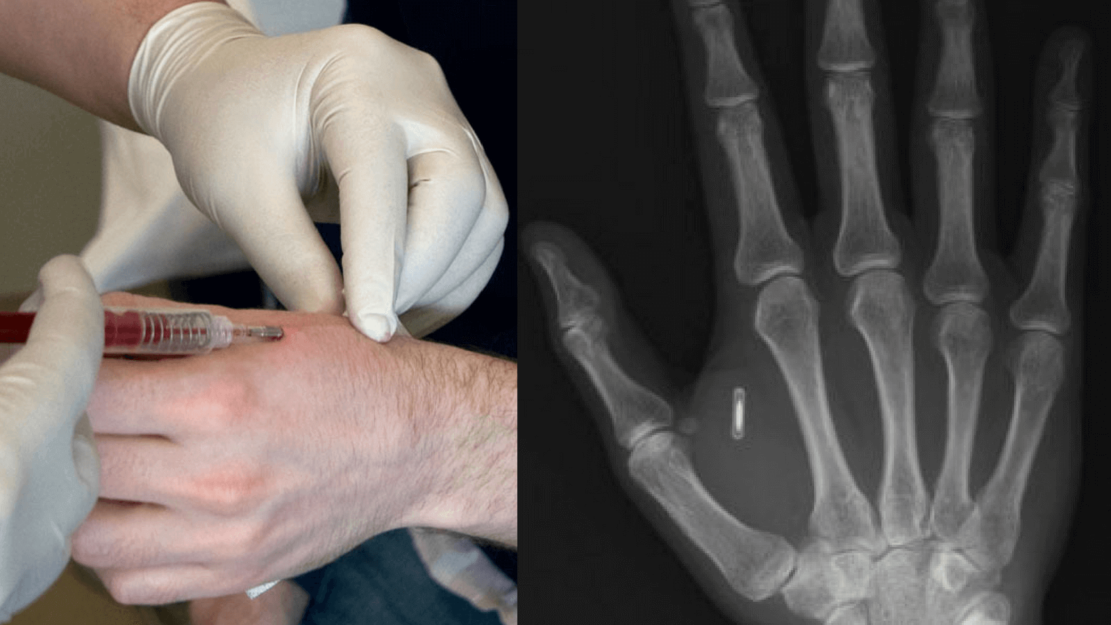 How Do You Know If Your Body Has An RFID Chip?