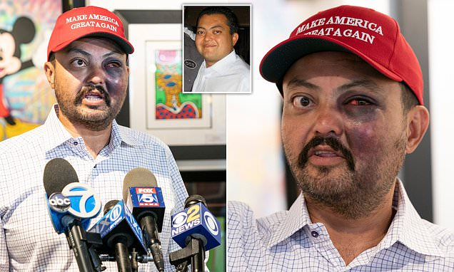 Trump fan beaten 'for wearing MAGA hat' blames Manhattan ...