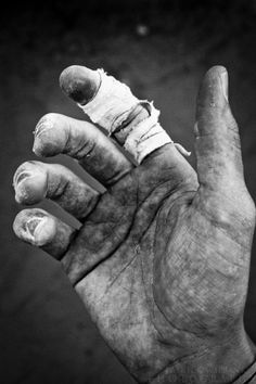 battered hand (With images) | Hand photography, Working ...