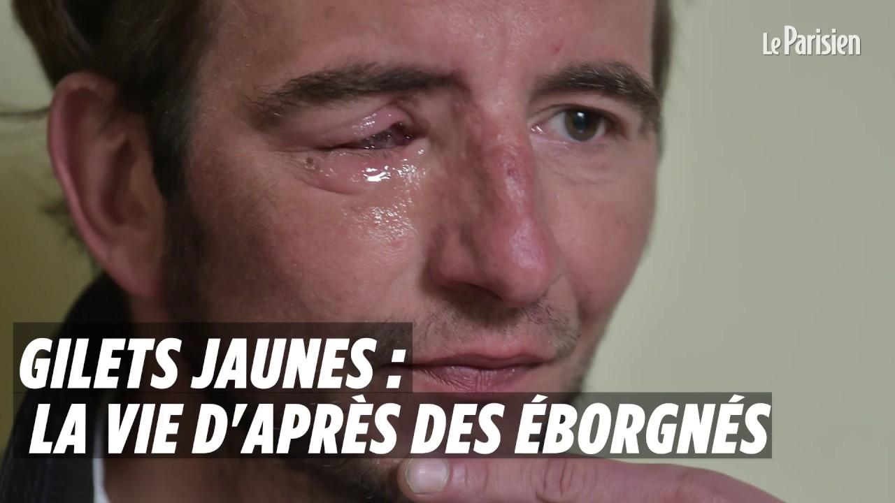 Gilets jaunes : la vie d'après des éborgnés - YouTube