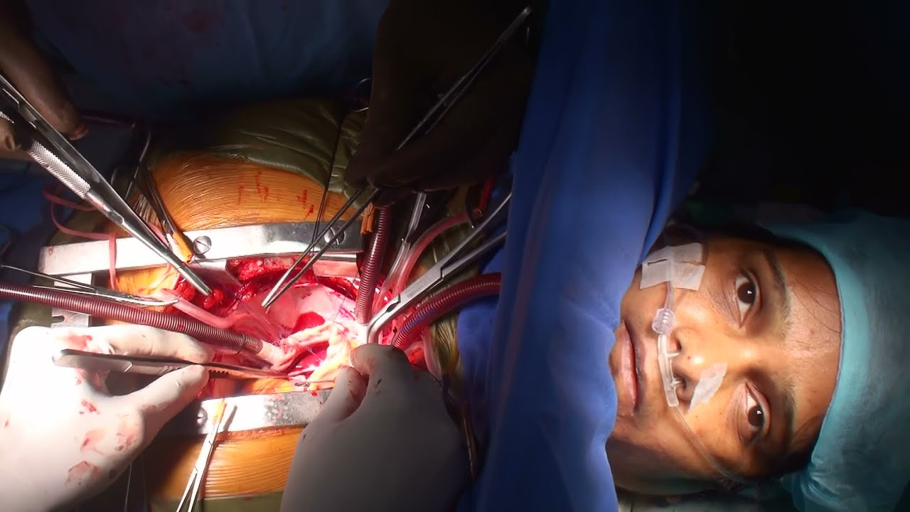 Awake cardiac surgery by Dr Nisarga (Full HD) - YouTube