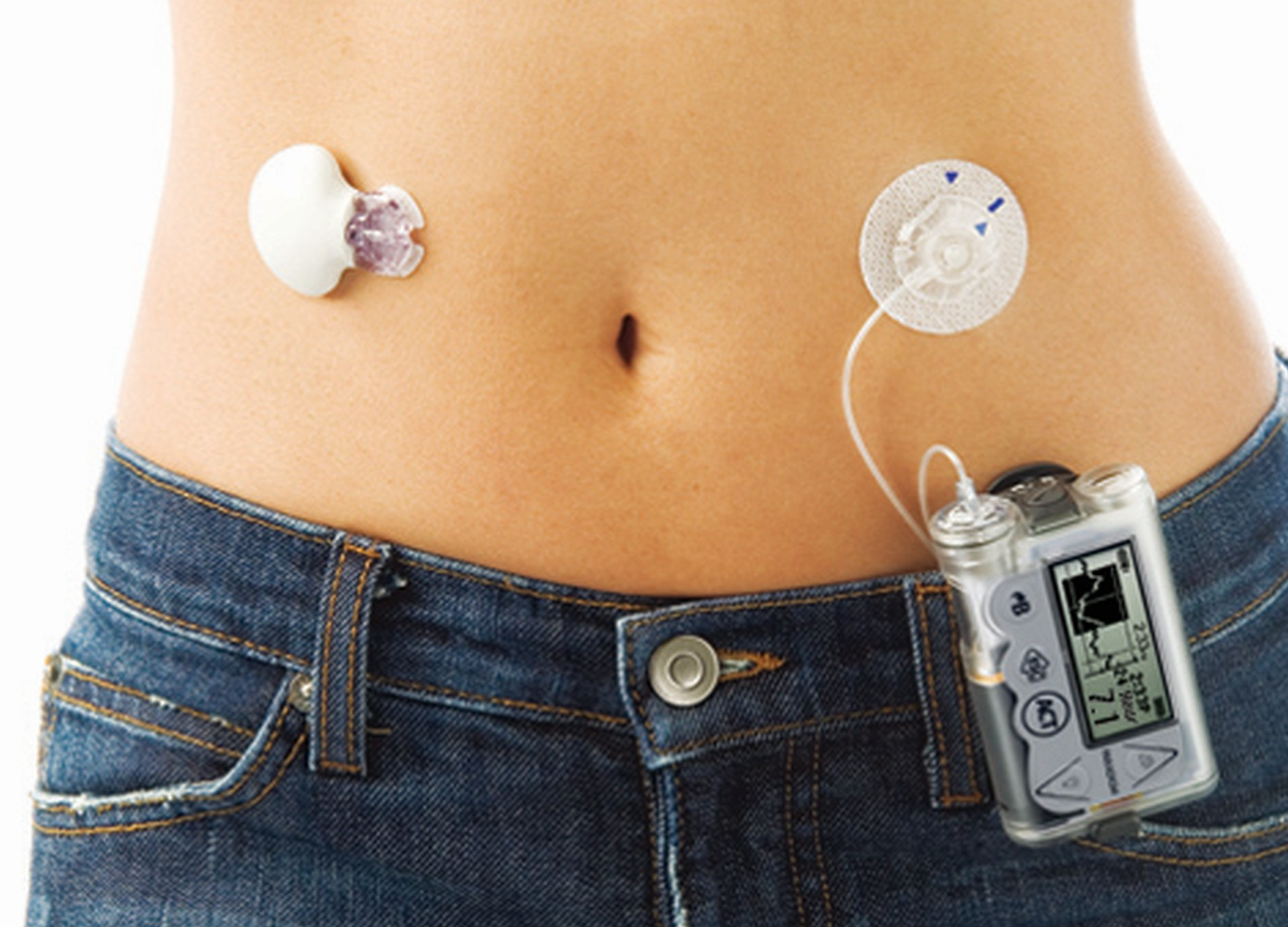 Artificial pancreas - JDRF