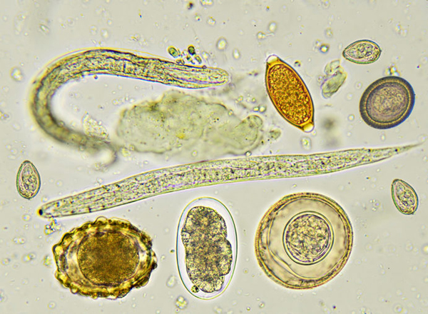 Laboratory Diagnosis of Intestinal Parasitic Infections ...