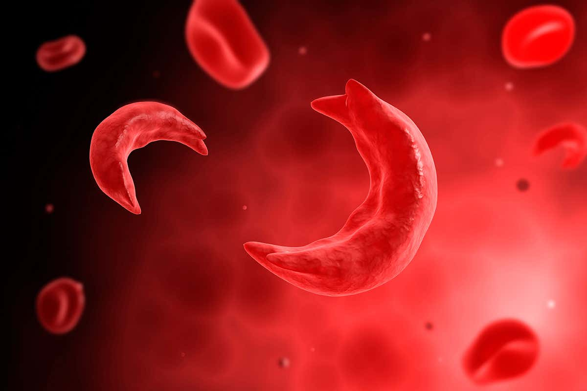 Three people with inherited diseases successfully treated with CRISPR – Two people with beta thalassaemia and one with sickle cell disease no longer require blood transfusions…