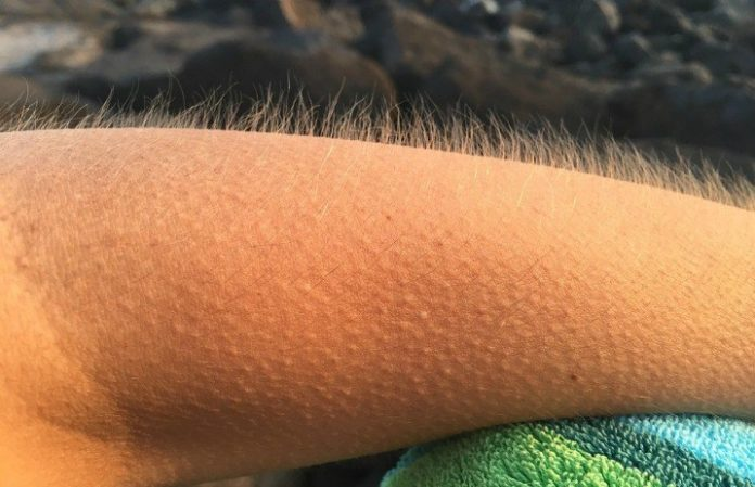 Get goosebumps while listening to music? Here's what it means - Alternative Press