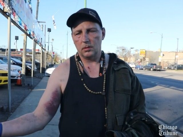 'What's Happening to America?' Trump Supporter Beaten by ...