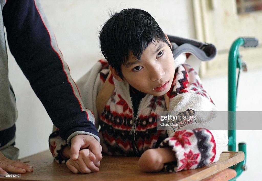 Vietnamese Agent Orange child victim plays inside the Ha ...