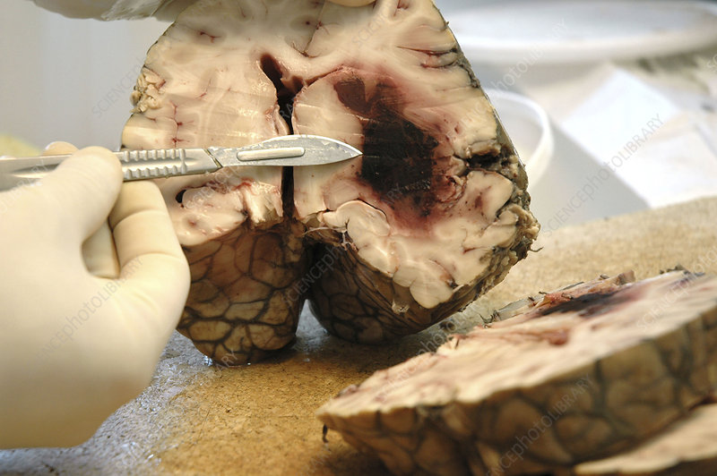 Autopsy - Stock Image - C002/7356 - Science Photo Library