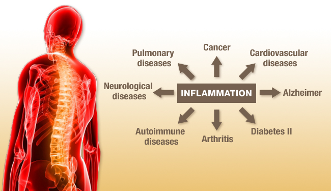 20 Ways to Fight Inflammation | Monterey Bay Holistic Alliance