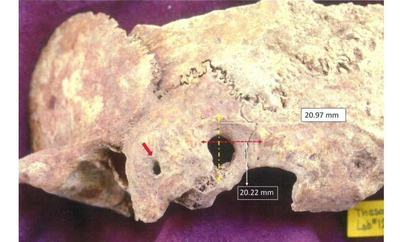 Researcher discovers early, complex brain surgery in ancient Greece…