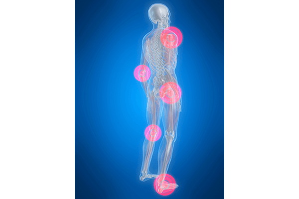 Joint Pain / Arthralgia | Shefford Osteopathic Clinic