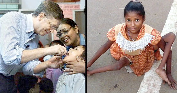 Bill Gates Polio vaccination in India have lead to 47,500 ...
