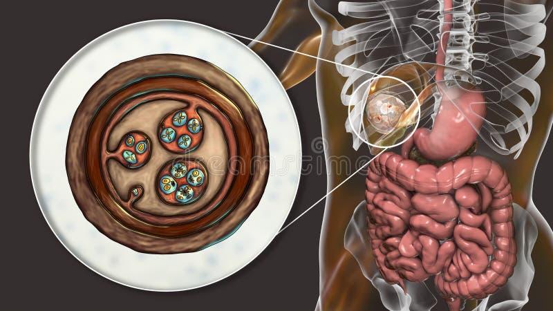 Hydatid Cyst Of Echinococcus Granulosus In The Liver Stock ...