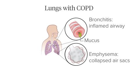 Pictures of COPD's Effect on the Lungs