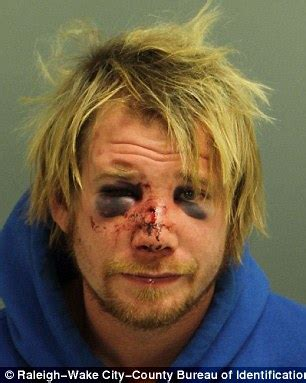 Intruder left with two black eyes after resident clobbered ...