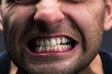 Grinding Teeth? Here's What You Should Know