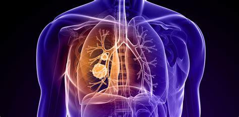 Setembro Roxo: mês de conscientização sobre a Fibrose Cística