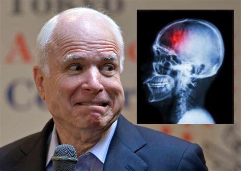John McCain Refuses Free VA Surgery For Brain Tumor