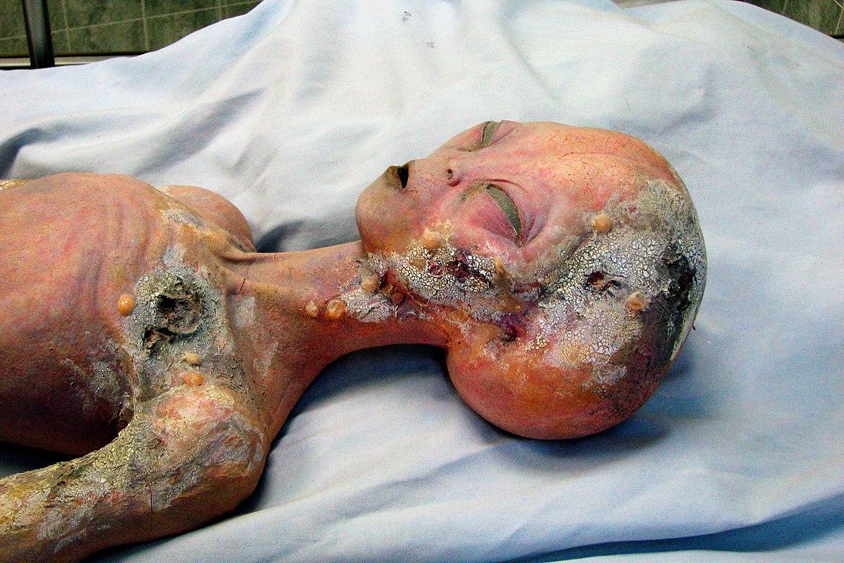 Autopsia a un supuesto extraterrestre - Wikipedia, la ...