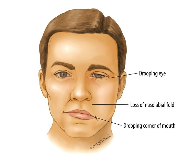 Bell's palsy - Symptoms, causes and other risk factors