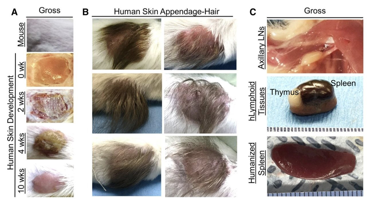 Scientists Use Scalps From Aborted Babies to Create ...