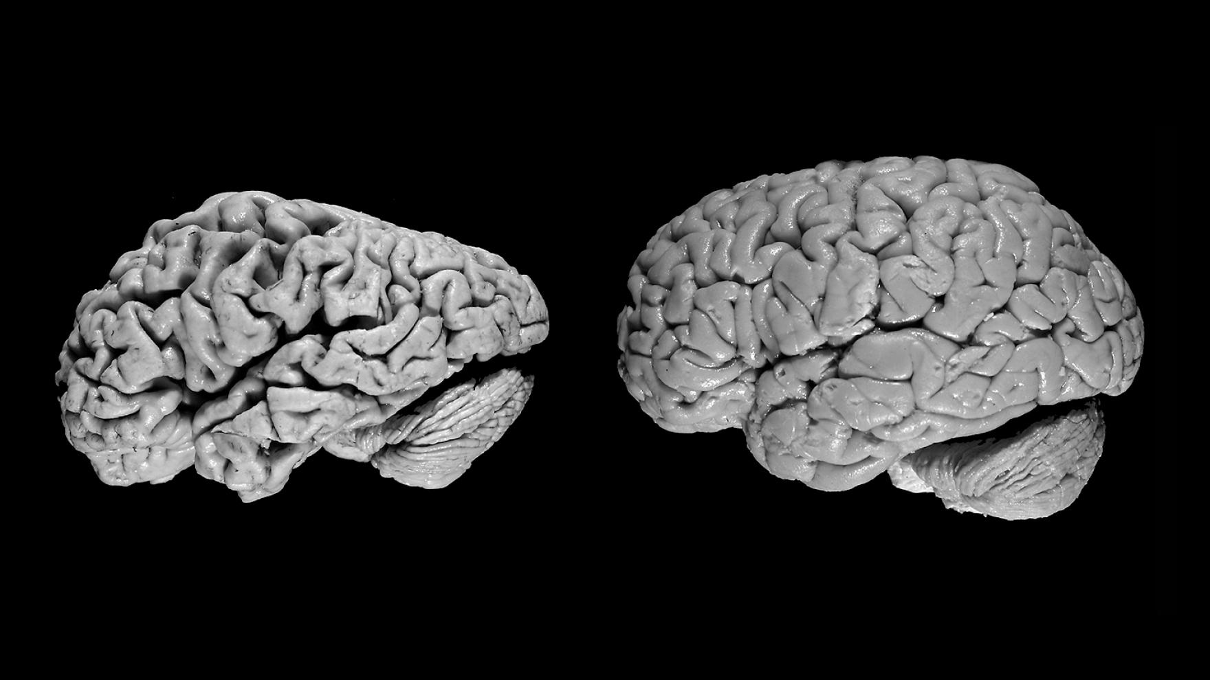 AD_brain_versus_normal.jpg&f=1&nofb=1